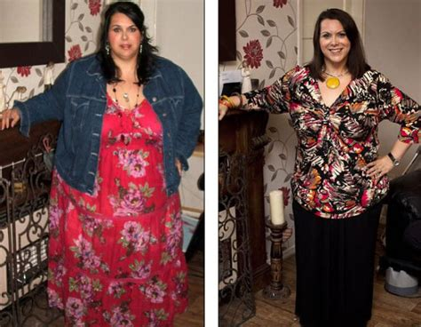 Gastric Sleeve Before and After Pictures and What You Can