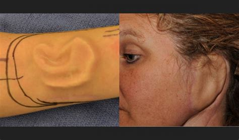 A woman has successfully grown a new ear on her arm   The