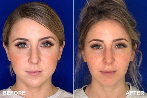 Two procedures for slimming down a round face – Madnani