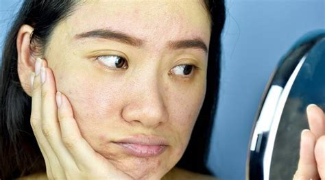 What does it mean when your skin is 'purging'? | Lifestyle