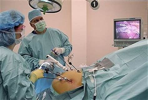 Affordable Cost Laparoscopy in India to Cure your